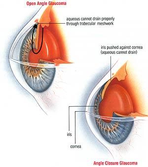 El glaucoma, principal causa de ceguera en México