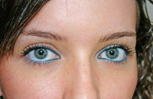 Mallorca se encuentra a la vanguardia en intervenciones de cirugía ocular