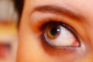 Tratamiento de la miopía