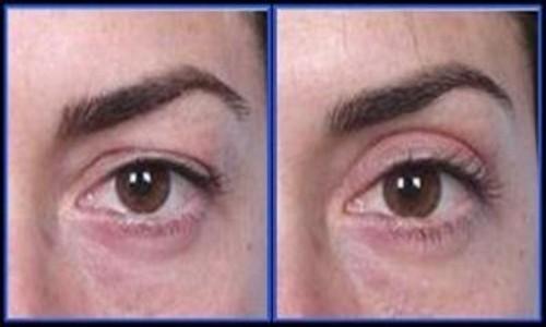 Antes y después de la cirugía de párpados