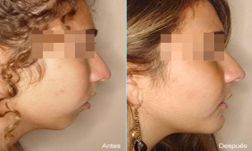 Cirugía estética para corregir el exceso maxilar