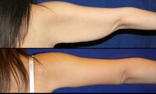 Cirugía para retirar el exceso de grasa de los brazos