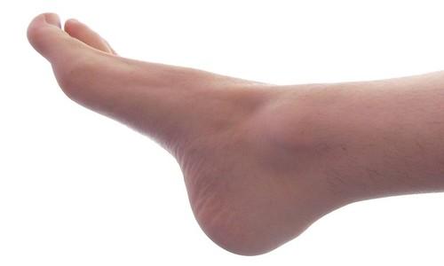 En qué consiste la artrodesis digital