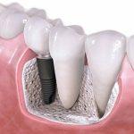 En qué consisten los implantes dentales
