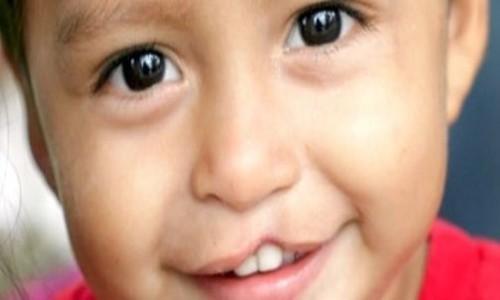 Niño con labio leporino